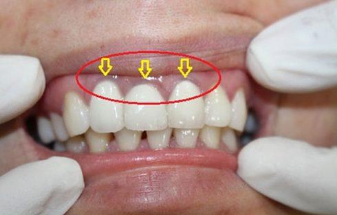 trồng răng sứ có bền không 3
