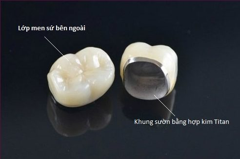 trồng răng sứ titan có tốt không 1