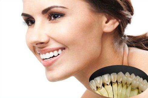 trồng răng sứ titan có tốt không 3