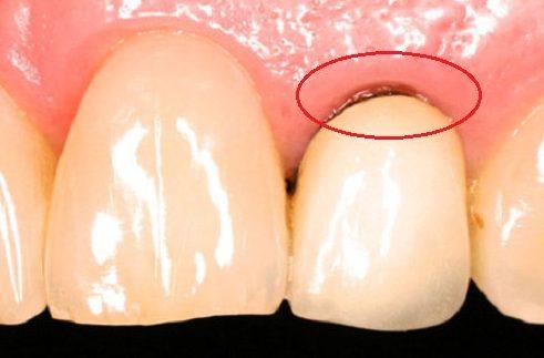trồng răng sứ titan có tốt không 4