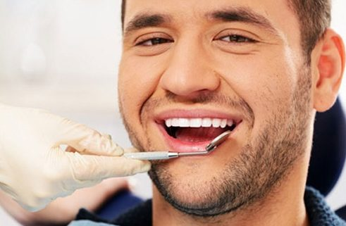 trươc khi tẩy trắng răng cần làm gì 1