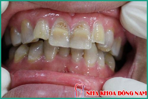 trươc khi tẩy trắng răng cần làm gì 3