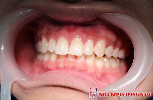 trươc khi tẩy trắng răng cần làm gì 6