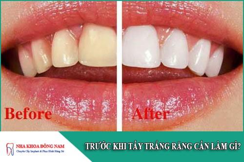 trước khi tẩy trắng răng cần làm gì