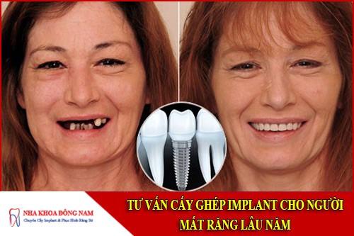 Tư Vấn Cấy Ghép Implant Cho Người Mất Răng Lâu Năm