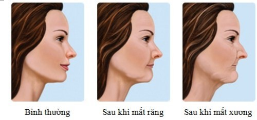lão hóa do mất răng