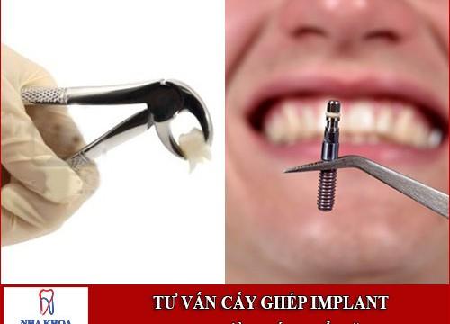 Tư vấn cấy ghép implant cho người mới nhổ răng