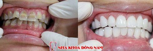 Ưu nhược điểm của răng toàn sứ zirconia 2