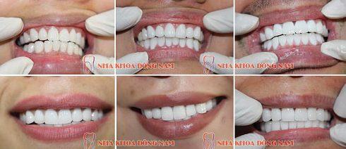 Ưu nhược điểm của răng toàn sứ zirconia 4