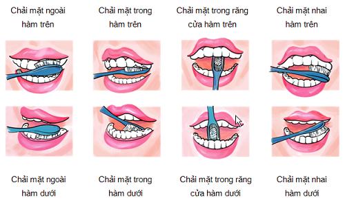 Cách vệ sinh răng miệng trước và sau khi cấy implant 3