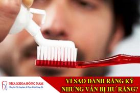vì sao đánh răng rất kỹ nhưng vẫn bị hư răng -1