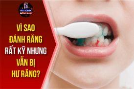 vì sao đánh răng rất kỹ vẫn bị hư răng