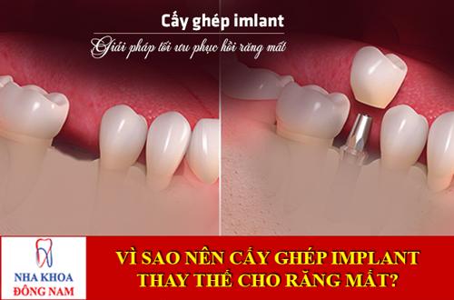 Vì sao nên cấy ghép implant thay thế cho răng mất?