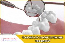 vì sao phải lấy cao răng tại nha khoa theo định kỳ
