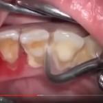 video cận cảnh cạo vôi răng để lâu ngày