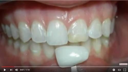 video hình ảnh sau khi dán laminate sứ cho răng
