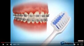 video hướng dẫn đánh răng sau khi niềng răng