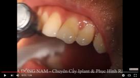 video mài răng bị mẻ cho đều nhau tại nha khoa