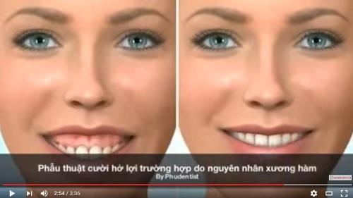 video mô phỏng cách thức điều trị cười hở lợi
