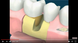 video mô phỏng quá trình điều trị lỗ hỏng chân răng