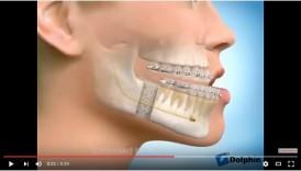 video mô phỏng quá trình phẫu thuật hàm móm