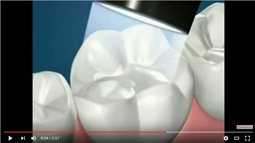 video mô phỏng quá trình trám răng sâu