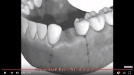 video quá trình cấy ghép implant vào răng hàm dưới
