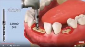 video quá trình cấy ghép răng dental implant