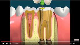 video quá trình chữa tủy răng bị nhiễm trùng
