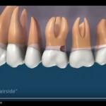 video qúa trình điều trị sâu chân răng và răng bị bể