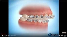 video quá trình niềng răng hô hiệu quả