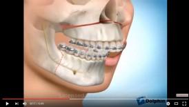 video quá trình phẫu thuật hàm hô