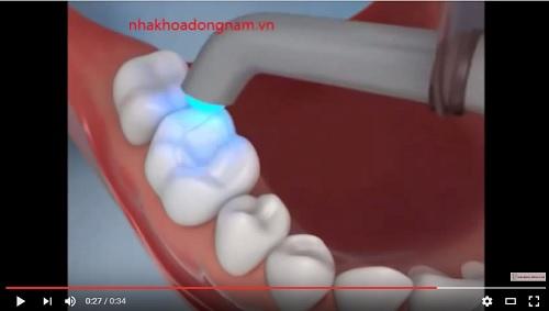 video quá trình trám răng bằng composite