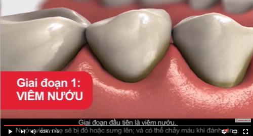 video tổng hợp kiến thức về bệnh nướu