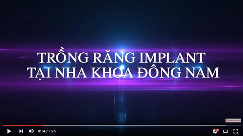 video trồng răng implant tại nha khoa đông nam