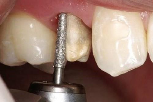 video mô phỏng quá trình bọc răng sứ