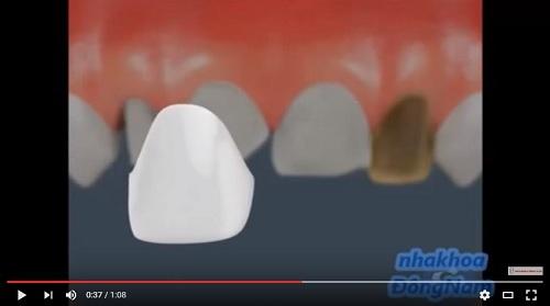 video youtube mô phỏng quá trình bọc răng sứ
