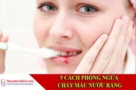 5 cách phòng ngừa chảy máu nướu răng
