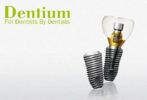 Cấy Ghép Răng Implant Chọn Loại Nào Tốt Nhất-1