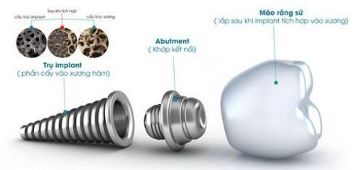 Cấy Ghép Răng Implant Chọn Loại Nào Tốt Nhất-4