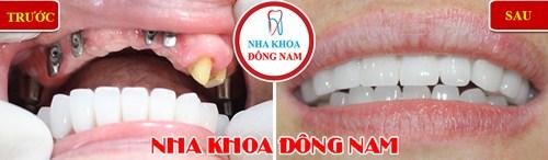 Tư Vấn Cấy Ghép Implant Cho Việt Kiều Về Nước Trồng Răng_18