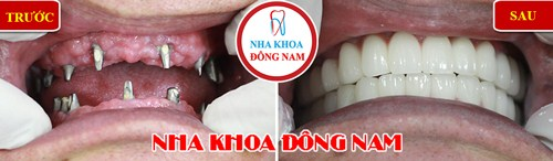 Tư Vấn Cấy Ghép Implant Cho Việt Kiều Về Nước Trồng Răng_19