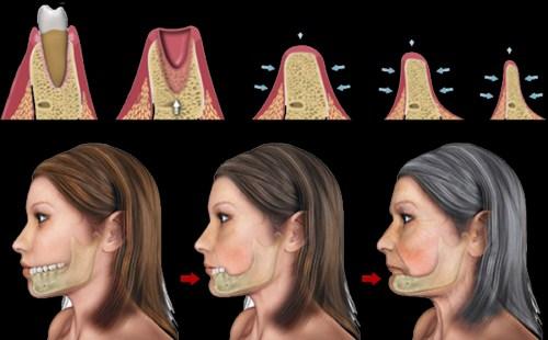 Tư Vấn Cấy Ghép Implant Cho Việt Kiều Về Nước Trồng Răng_2