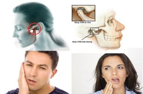 Tư Vấn Cấy Ghép Implant Cho Việt Kiều Về Nước Trồng Răng_3