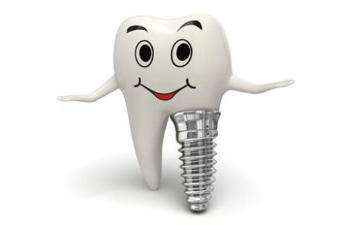 Tư Vấn Cấy Ghép Implant Cho Việt Kiều Về Nước Trồng Răng_4