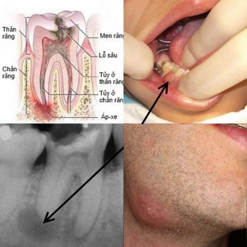 triệu chứng áp xe quanh răng