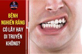Bệnh nghiến răng có lây hay di truyền không