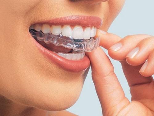 cách chữa bệnh nghiến răng