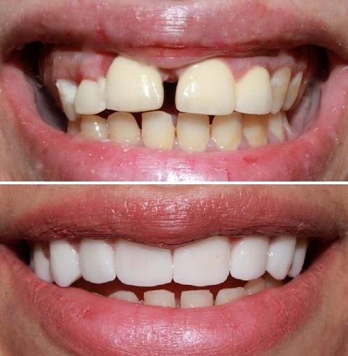 cách trị nghiến răng hiệu quả