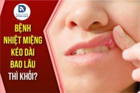 Bệnh nhiệt miệng kéo dài bao lâu thì khỏi hoàn toàn